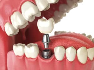 Dental Implants in West Orange, NJ