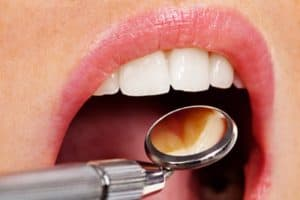 Treating common dental symptoms West Orange, NJ