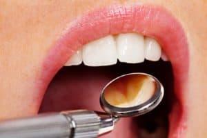 Treating common dental symptoms West Orange, NJ