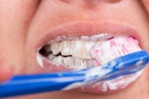 Proper Teeth Brushing