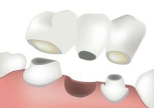Understanding dental bridges