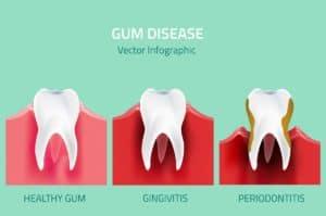 Reducing gum disease risk West Orange, NJ