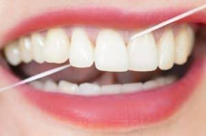 Preventative dental care in West Orange, NJ