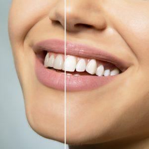 Cosmetic dentistry in West Orange, NJ
